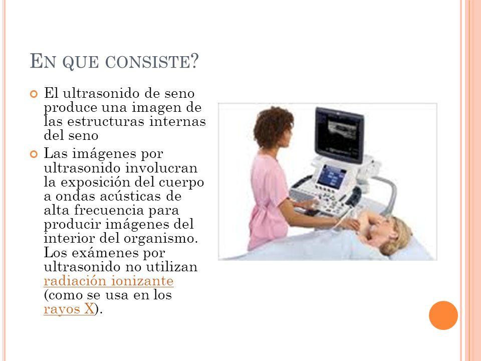 En que consiste El ultrasonido de seno produce una imagen de las estructuras internas del seno.