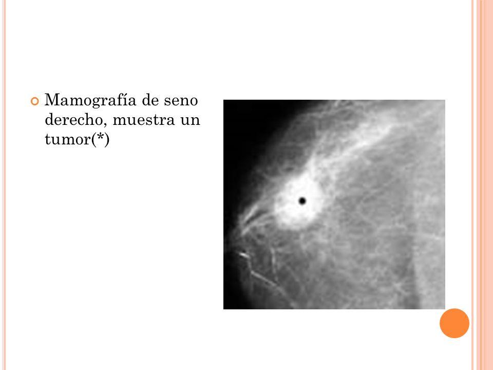 Mamografía de seno derecho, muestra un tumor(*)