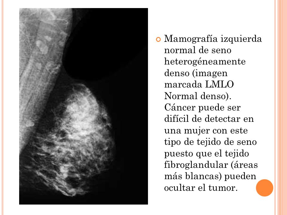 Mamografía izquierda normal de seno heterogéneamente denso (imagen marcada LMLO Normal denso).