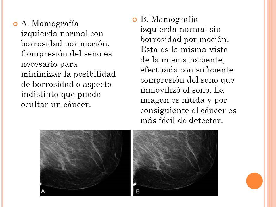 B. Mamografía izquierda normal sin borrosidad por moción
