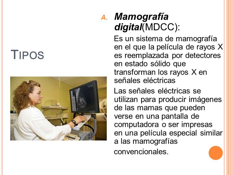 Tipos Mamografía digital(MDCC):
