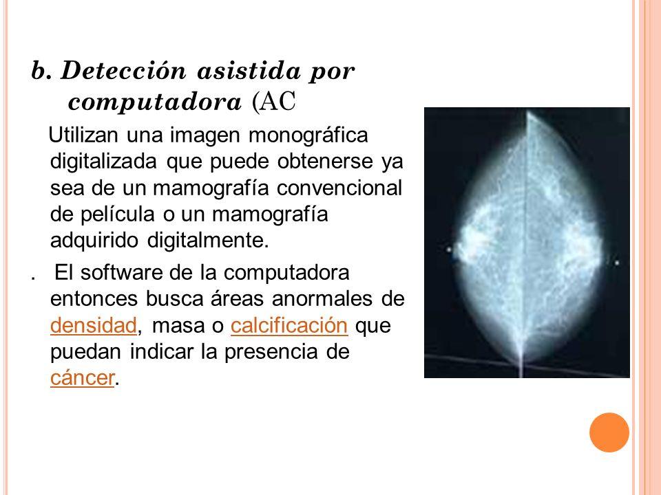 b. Detección asistida por computadora (AC