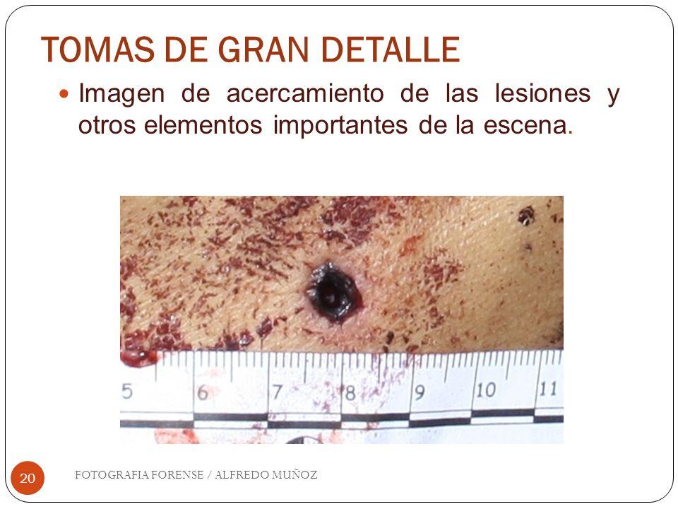 TOMAS DE GRAN DETALLE Imagen de acercamiento de las lesiones y otros elementos importantes de la escena.