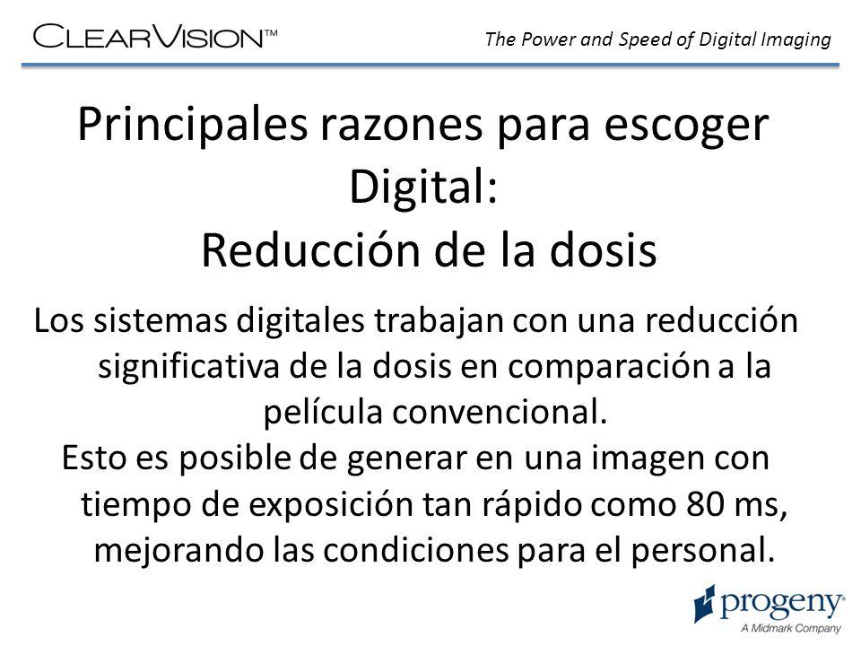 Principales razones para escoger Digital: Reducción de la dosis