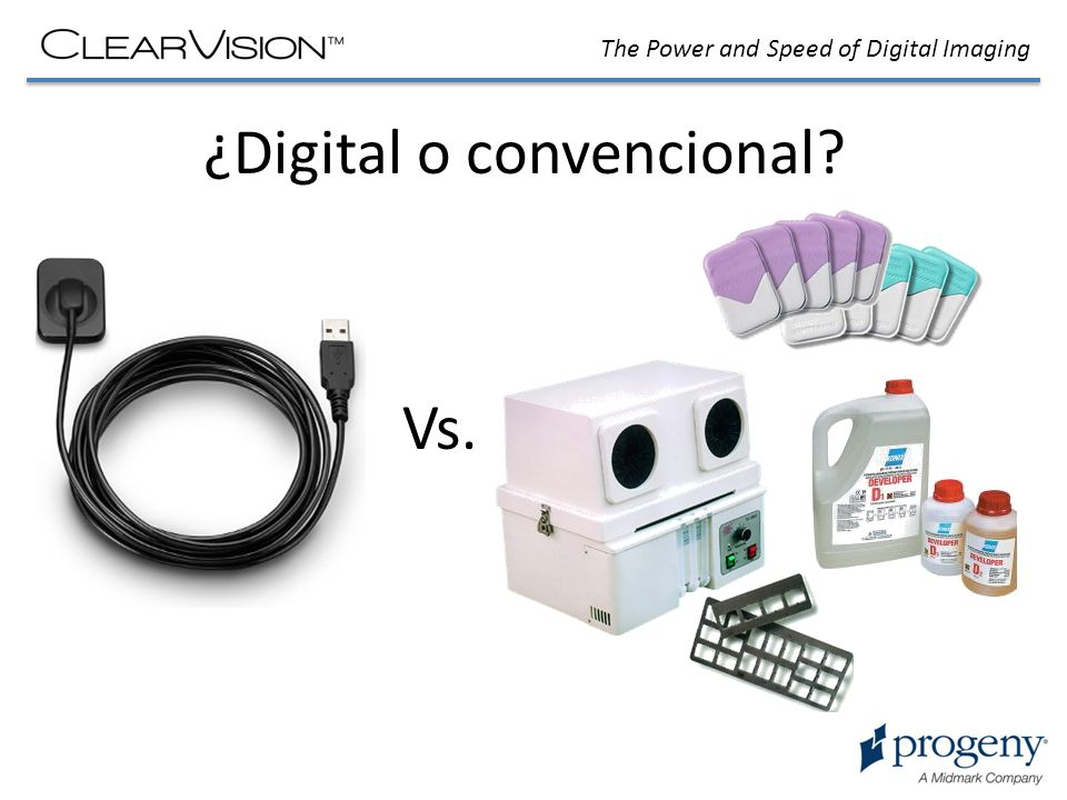 ¿Digital o convencional