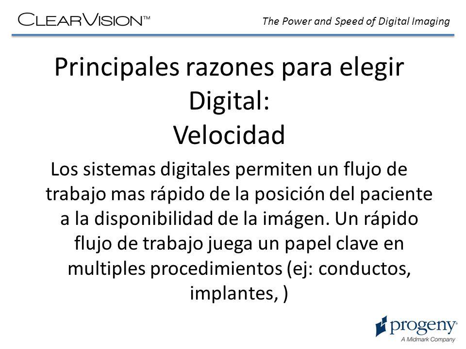 Principales razones para elegir Digital: Velocidad