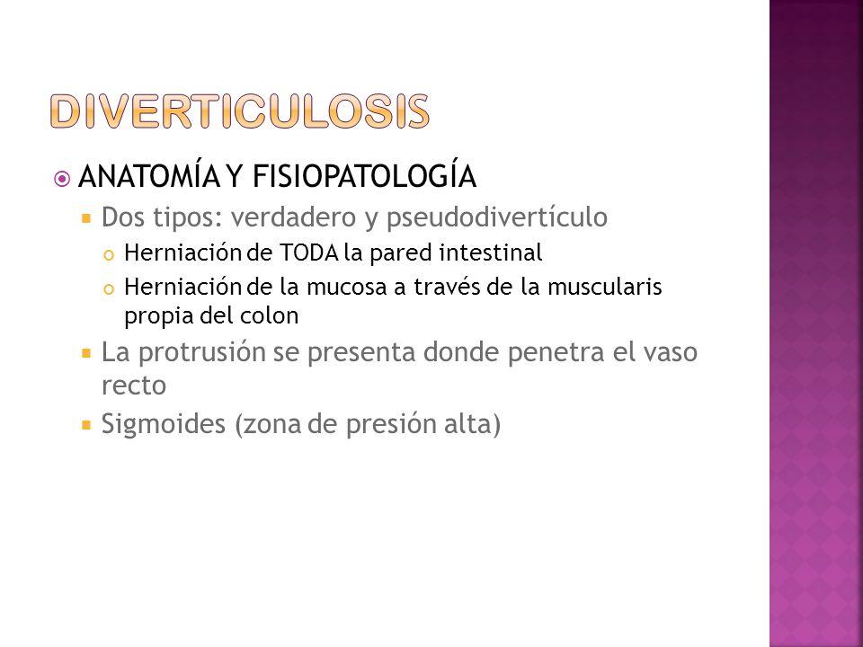 diverticulosis ANATOMÍA Y FISIOPATOLOGÍA