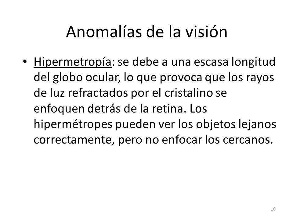 Anomalías de la visión