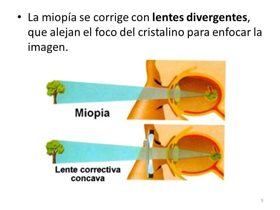 La miopía se corrige con lentes divergentes, que alejan el foco del cristalino para enfocar la imagen.