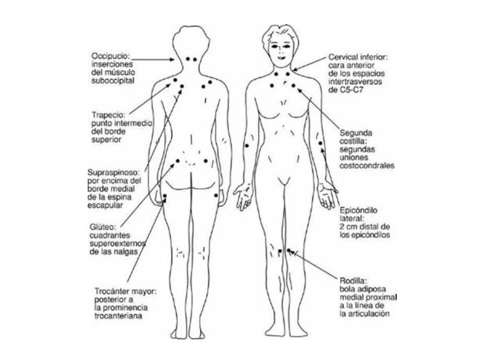 Factores para detectar la fibromialgia