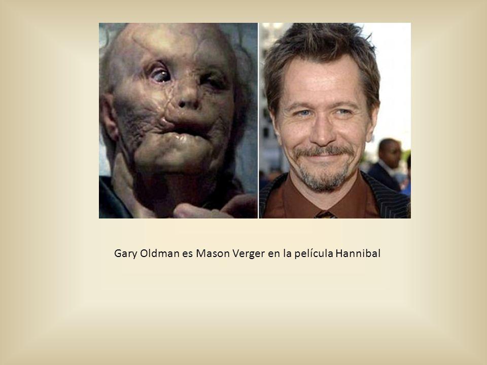Gary Oldman es Mason Verger en la película Hannibal