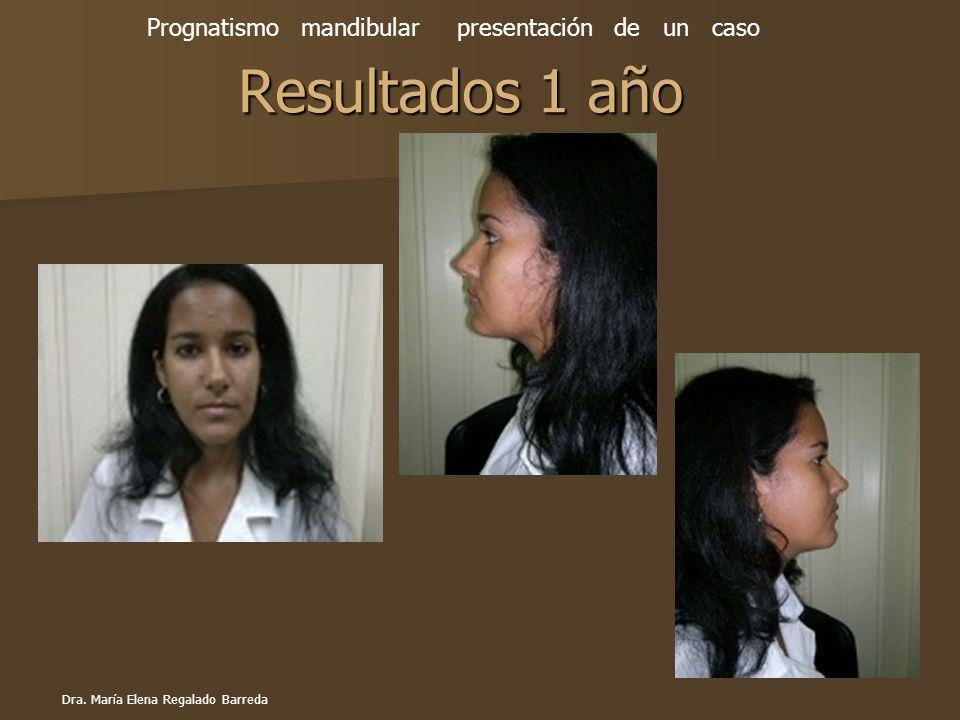 Prognatismo mandibular presentación de un caso