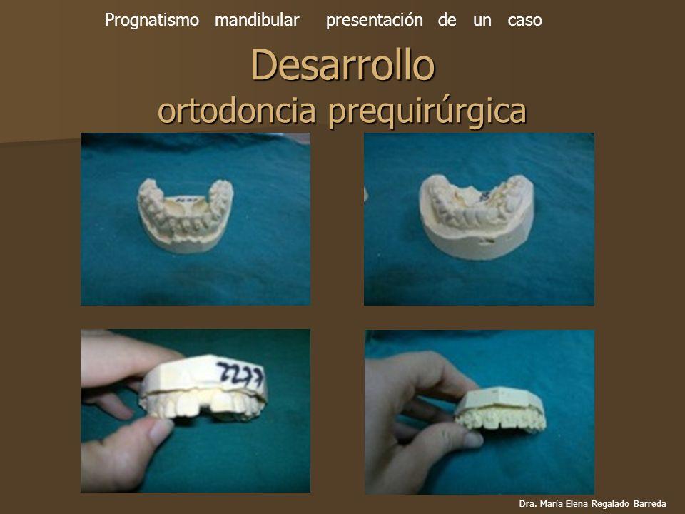 Desarrollo ortodoncia prequirúrgica
