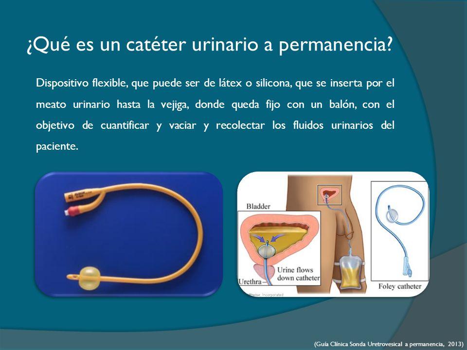 ¿Qué es un catéter urinario a permanencia