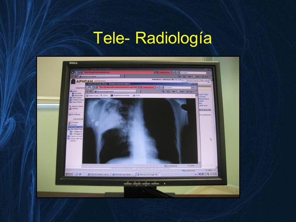 Tele- Radiología
