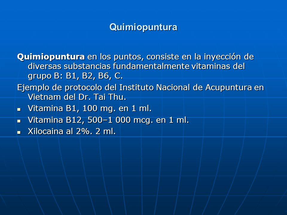 Quimiopuntura Quimiopuntura en los puntos, consiste en la inyección de diversas substancias fundamentalmente vitaminas del grupo B: B1, B2, B6, C.