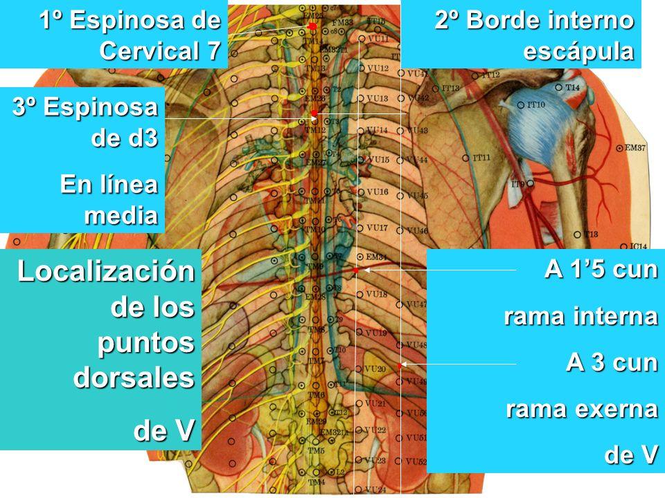 Localización de los puntos dorsales