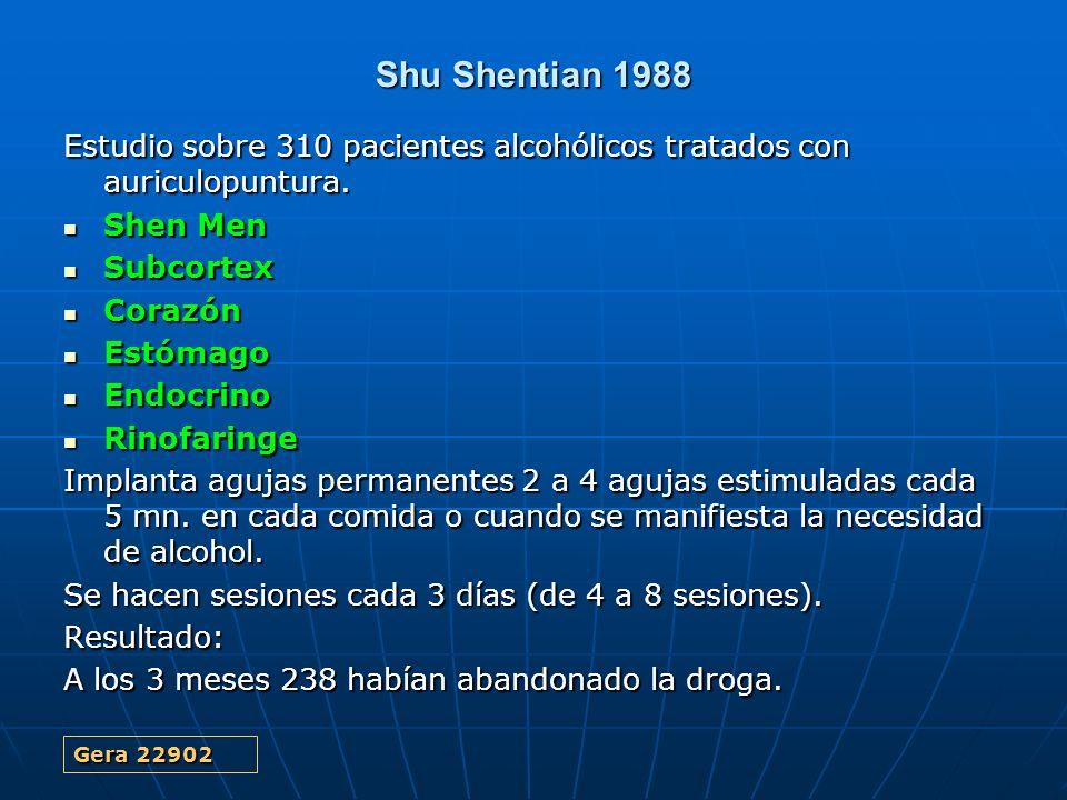 Shu Shentian 1988 Estudio sobre 310 pacientes alcohólicos tratados con auriculopuntura. Shen Men. Subcortex.