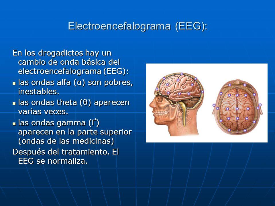 Electroencefalograma (EEG):