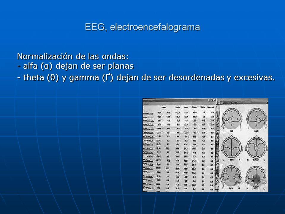 EEG, electroencefalograma