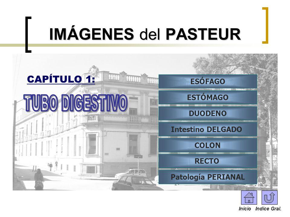 IMÁGENES del PASTEUR TUBO DIGESTIVO CAPÍTULO 1: ESÓFAGO ESTÓMAGO