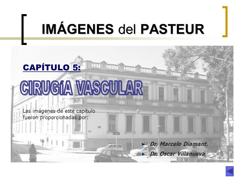 IMÁGENES del PASTEUR CIRUGÍA VASCULAR CAPÍTULO 5: