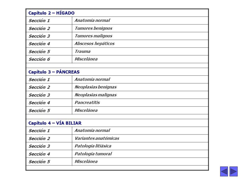. Capítulo 2 – HÍGADO Sección 1 Sección 2 Sección 3 Sección 4