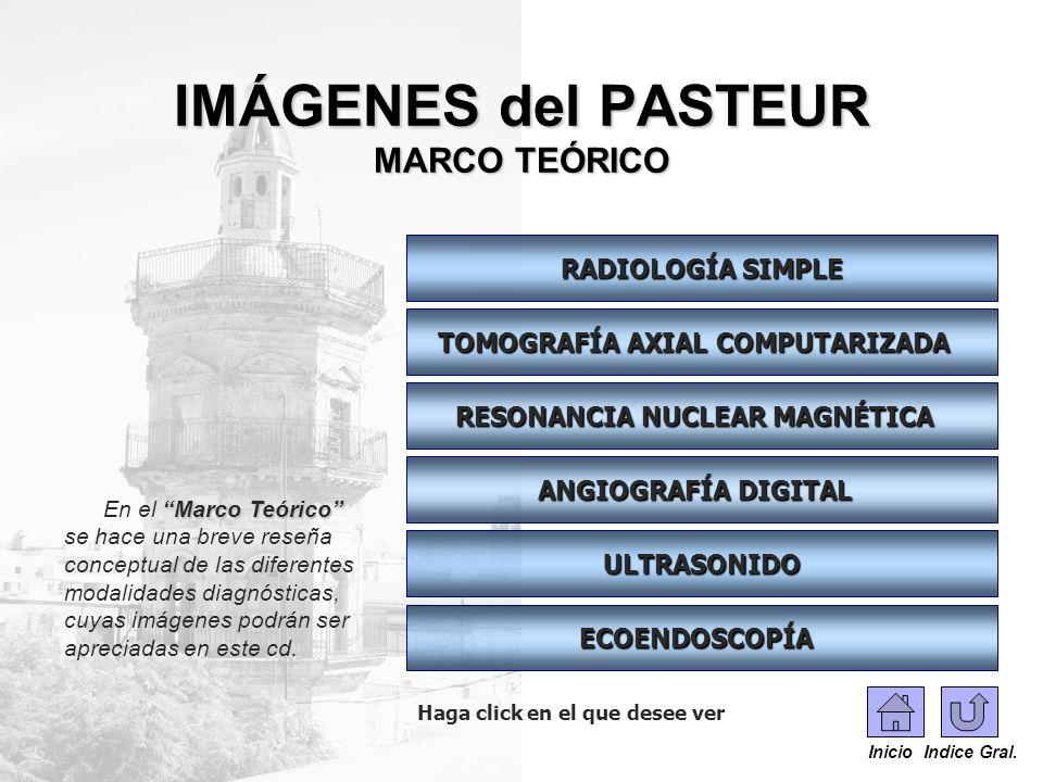 IMÁGENES del PASTEUR MARCO TEÓRICO