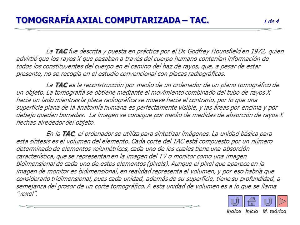 TOMOGRAFÍA AXIAL COMPUTARIZADA – TAC. 1 de 4