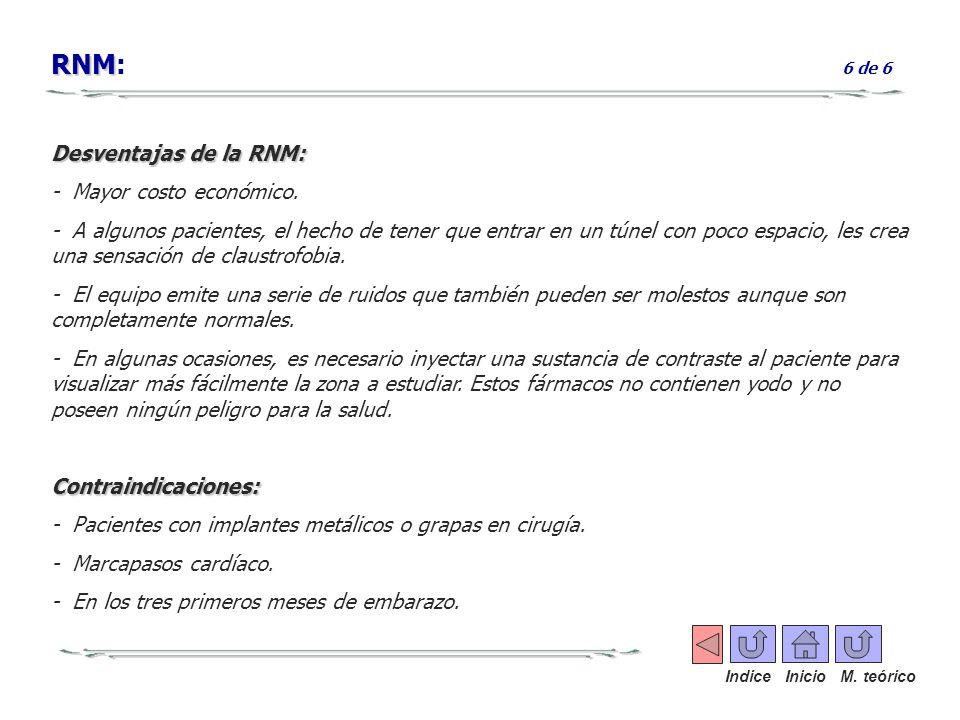 RNM: 6 de 6 Desventajas de la RNM: - Mayor costo económico.