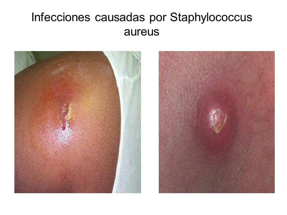 Infecciones causadas por Staphylococcus aureus