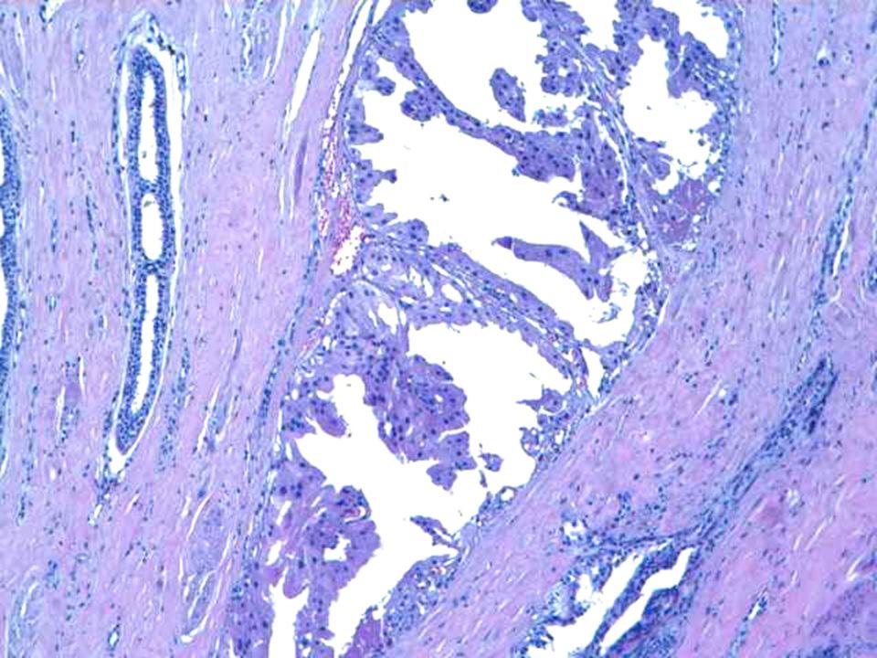 Estructuras tubulares formadas por una doble hilera o doble capa de células epiteliales. La capa externa mioepitelial y la capa interna con células columnares o cuboidales, orientadas de manera perpendicular.