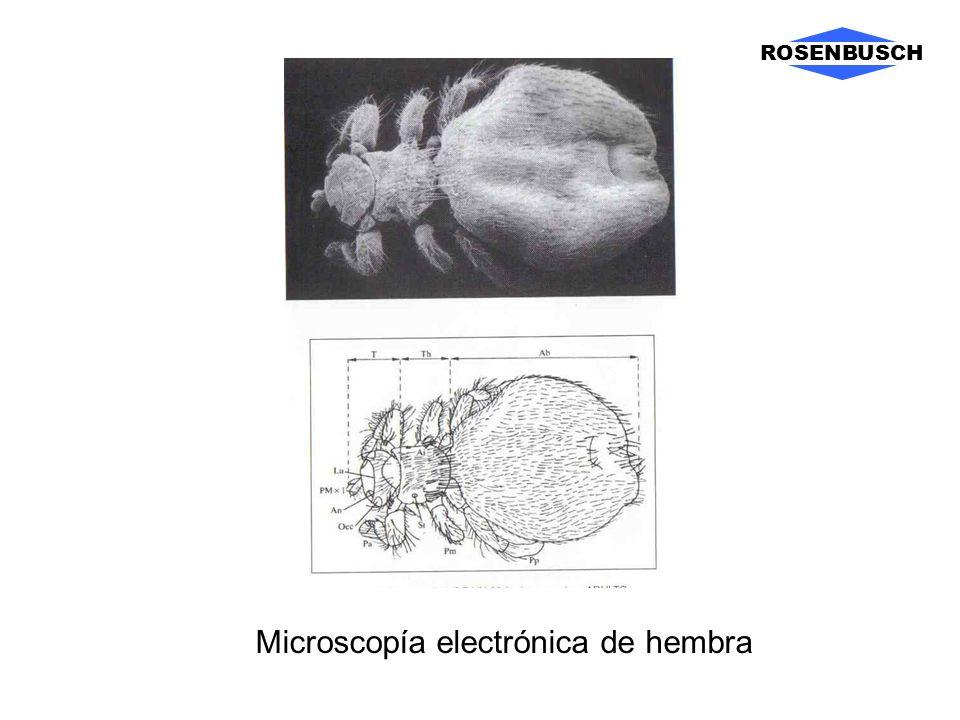 Microscopía electrónica de hembra