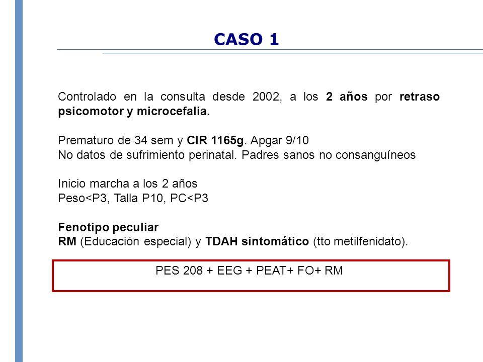 CASO 1 Controlado en la consulta desde 2002, a los 2 años por retraso psicomotor y microcefalia. Prematuro de 34 sem y CIR 1165g. Apgar 9/10.