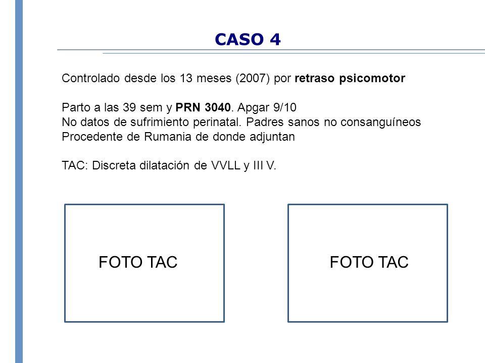 CASO 4 Controlado desde los 13 meses (2007) por retraso psicomotor. Parto a las 39 sem y PRN 3040. Apgar 9/10.