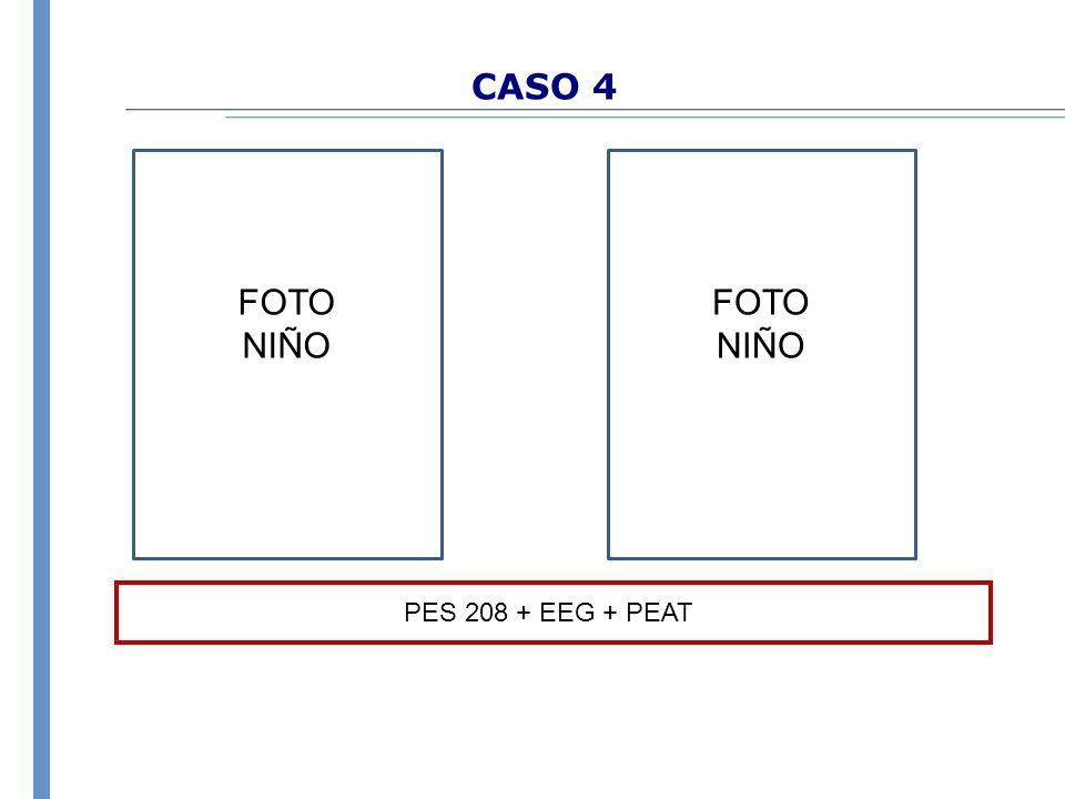 CASO 4 FOTO NIÑO FOTO NIÑO PES 208 + EEG + PEAT