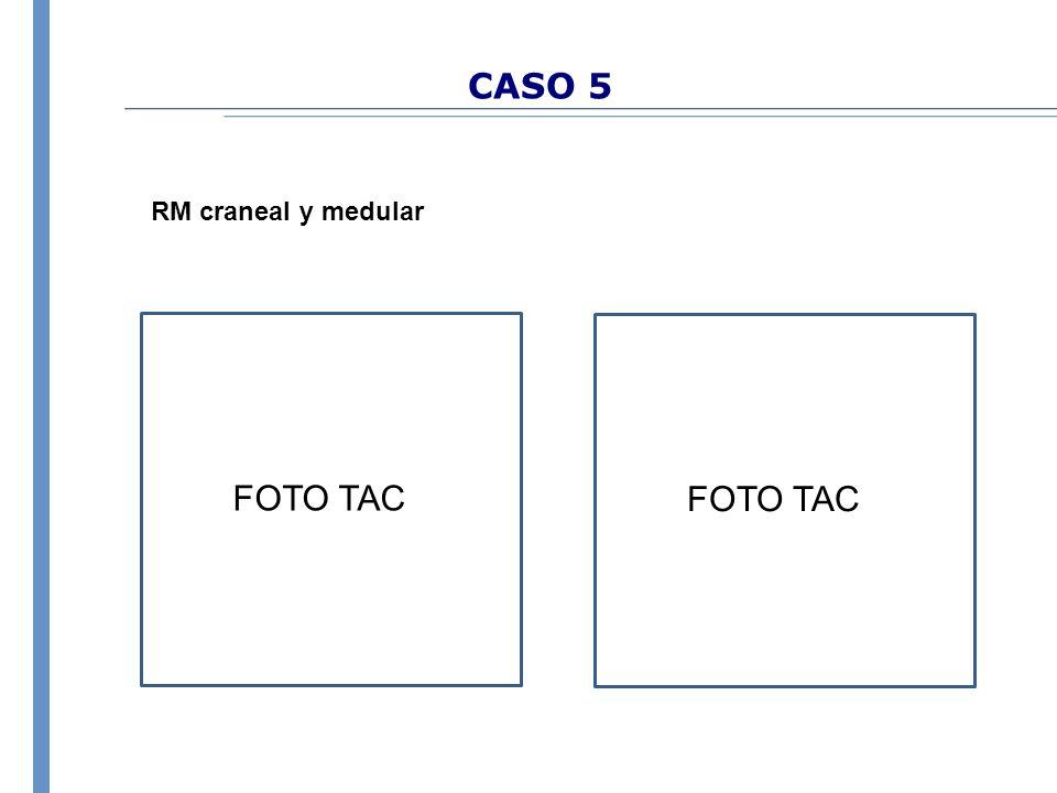 CASO 5 RM craneal y medular FOTO TAC FOTO TAC