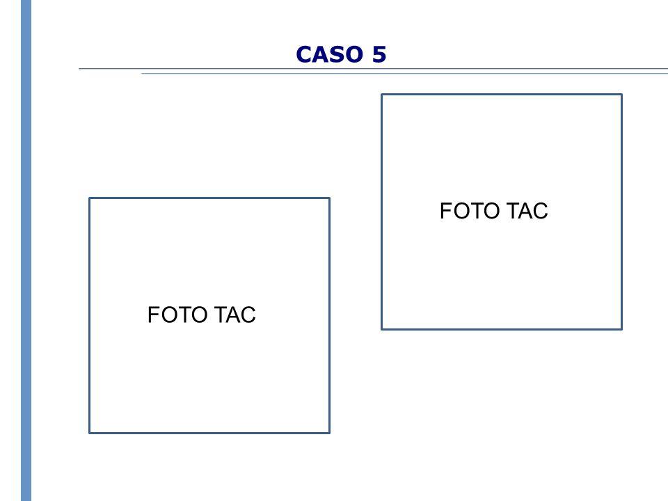 CASO 5 FOTO TAC FOTO TAC
