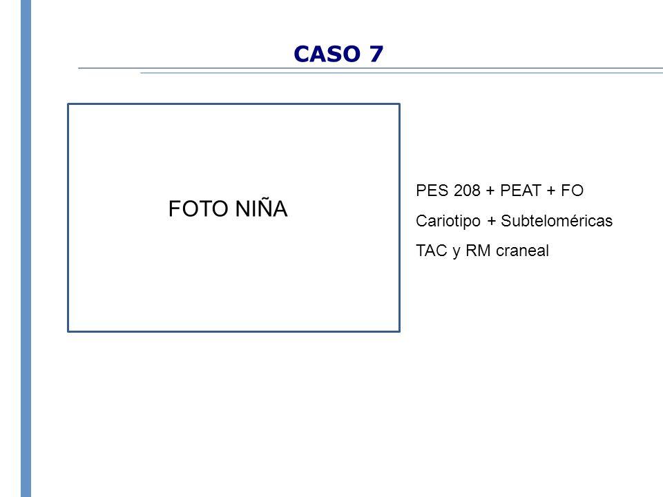 CASO 7 FOTO NIÑA PES 208 + PEAT + FO Cariotipo + Subteloméricas