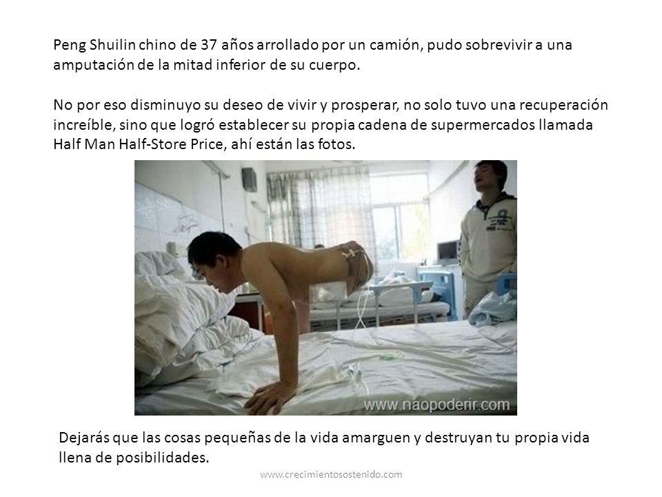 Peng Shuilin chino de 37 años arrollado por un camión, pudo sobrevivir a una amputación de la mitad inferior de su cuerpo.