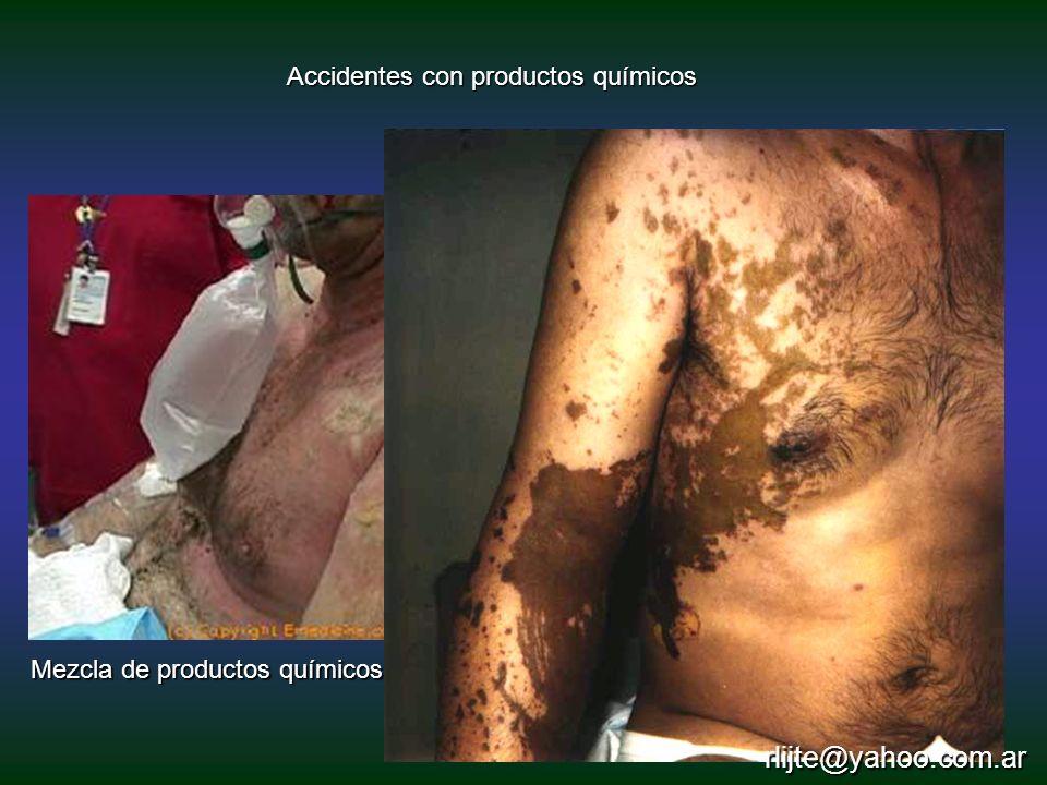 rlijte@yahoo.com.ar Accidentes con productos químicos