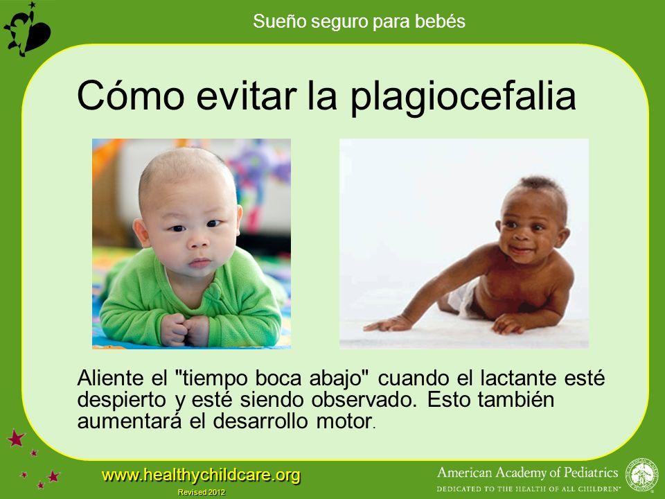Cómo evitar la plagiocefalia