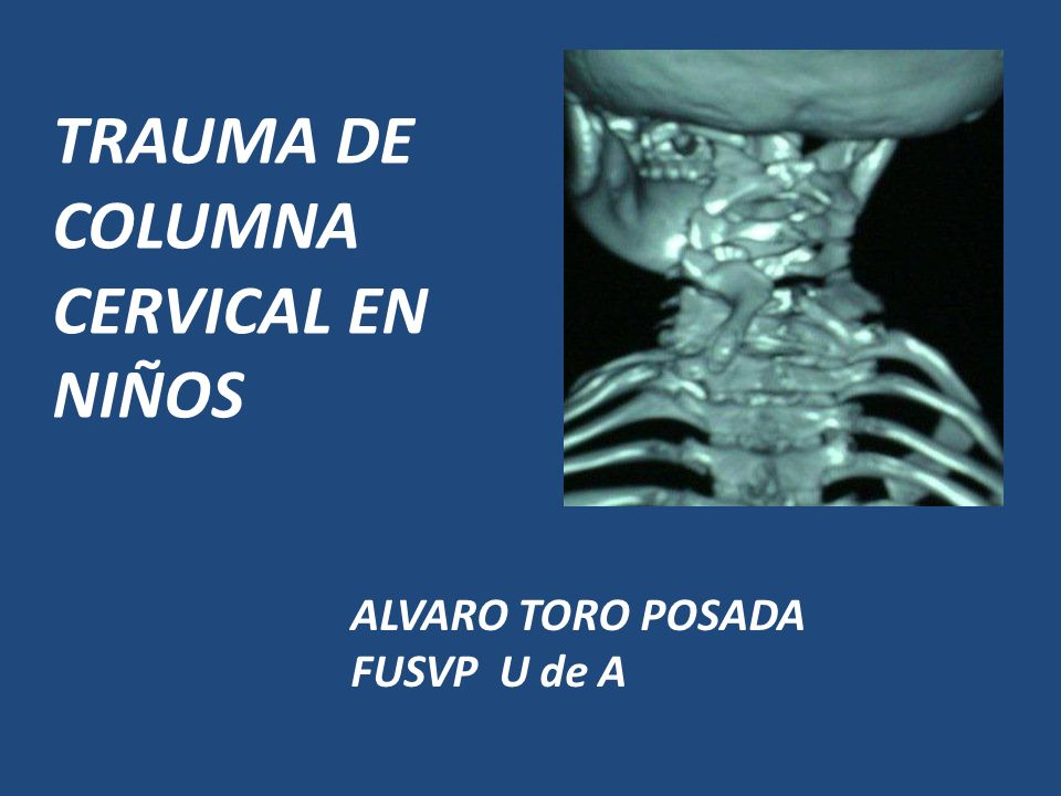 TRAUMA DE COLUMNA CERVICAL EN NIÑOS - ppt video online descargar