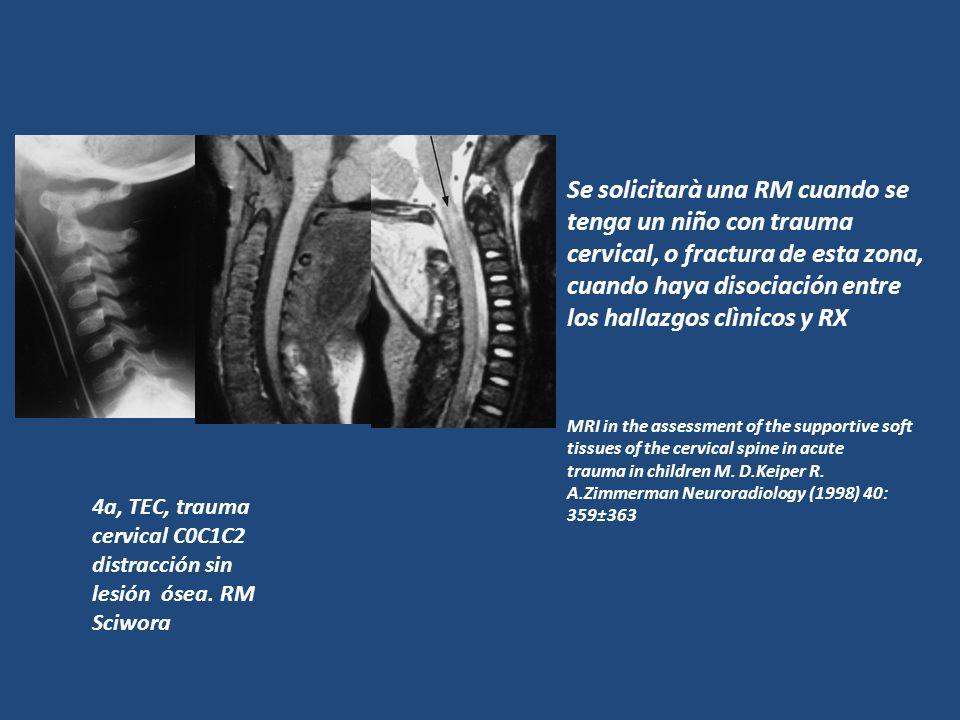 Se solicitarà una RM cuando se tenga un niño con trauma cervical, o fractura de esta zona, cuando haya disociación entre los hallazgos clìnicos y RX