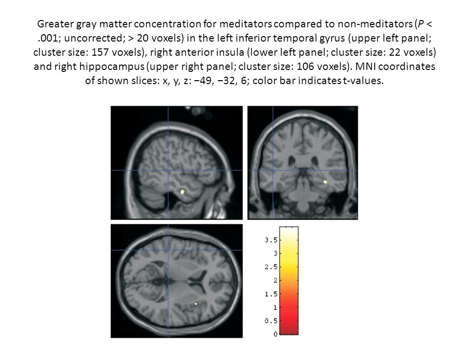 Greater gray matter concentration for meditators compared to non-meditators (P < .001; uncorrected; > 20 voxels) in the left inferior temporal gyrus (upper left panel; cluster size: 157 voxels), right anterior insula (lower left panel; cluster size: 22 voxels) and right hippocampus (upper right panel; cluster size: 106 voxels).