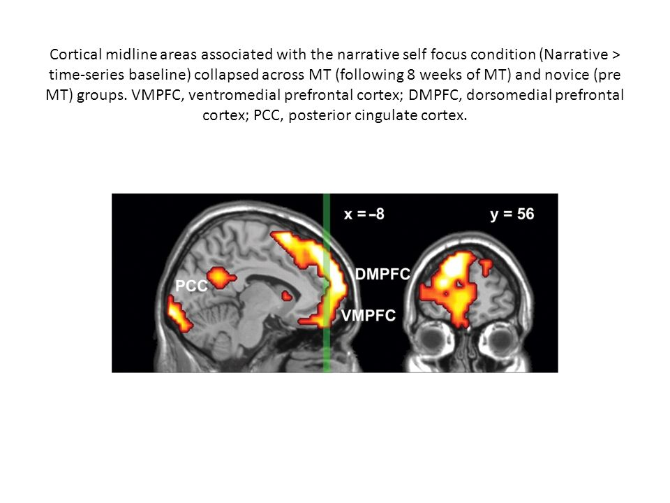 Cortical midline areas associated with the narrative self focus condition (Narrative > time-series baseline) collapsed across MT (following 8 weeks of MT) and novice (pre MT) groups.