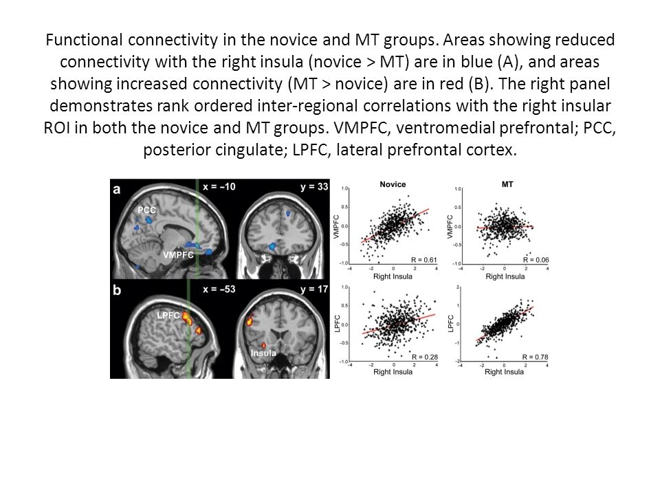 Functional connectivity in the novice and MT groups