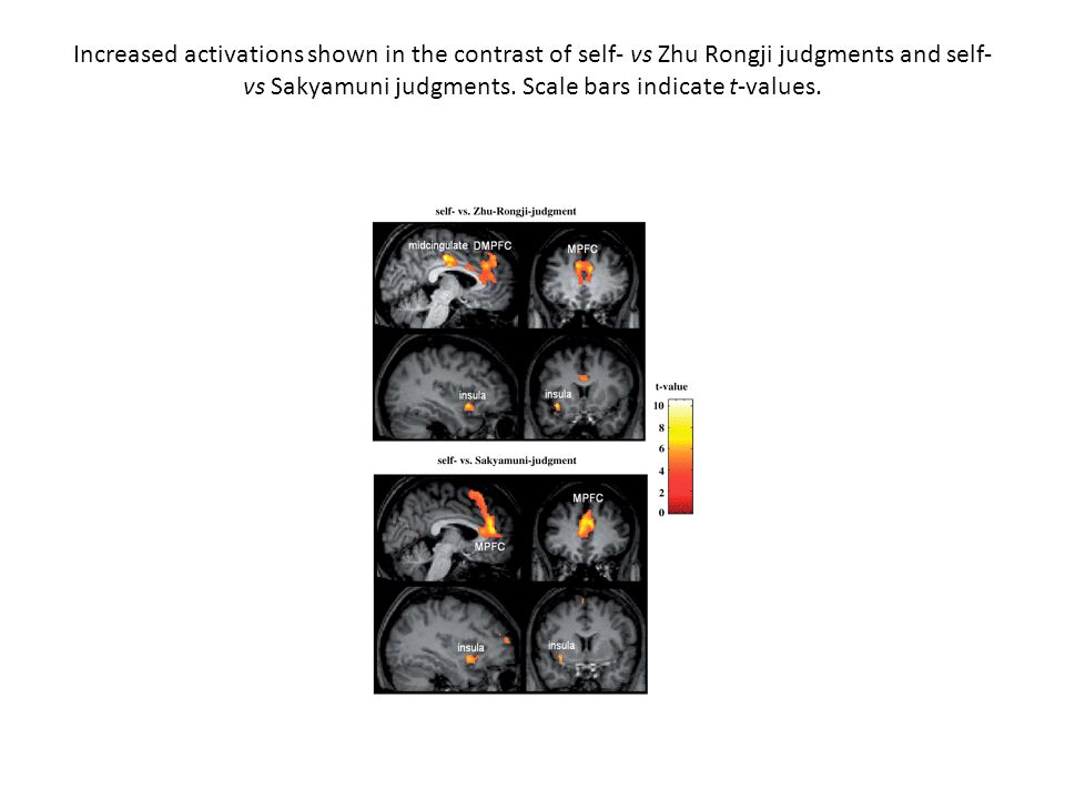 Increased activations shown in the contrast of self- vs Zhu Rongji judgments and self- vs Sakyamuni judgments.