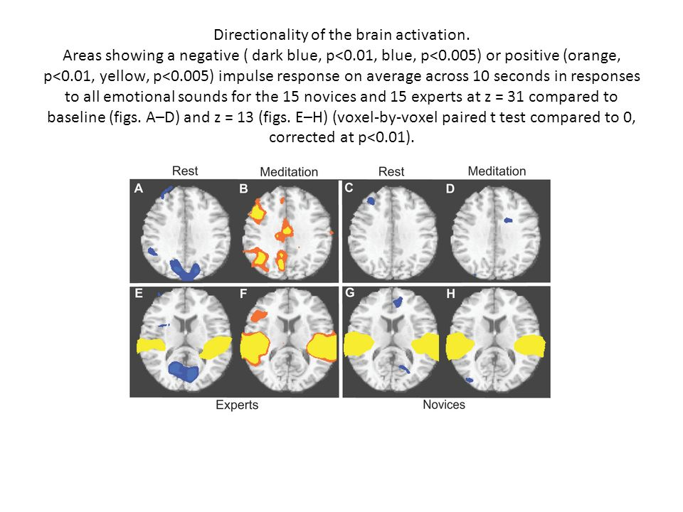 Directionality of the brain activation