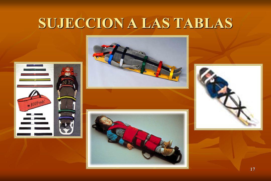 SUJECCION A LAS TABLAS
